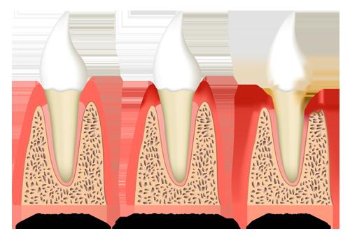 Die Parodontitis bezeichnet eine bakterielle Entzündung des Zahnbettes.