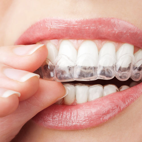 Vergilbte und verfärbte Zähne lassen sich mittels Bleichen wieder aufhellen.