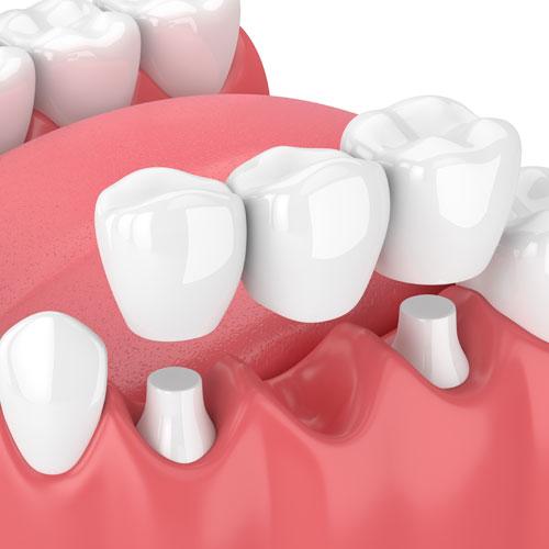 Ein festsitzender Zahnersatz sind z. B. Zahnkronen und Brücken aus Vollkeramik.