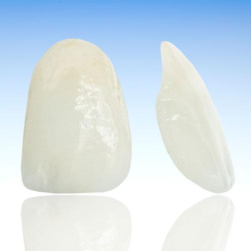 Mithilfe von Veneers können Zahnfehlstellungen oder auch beschädigte oder verfärbte Zähne korrigiert werden.