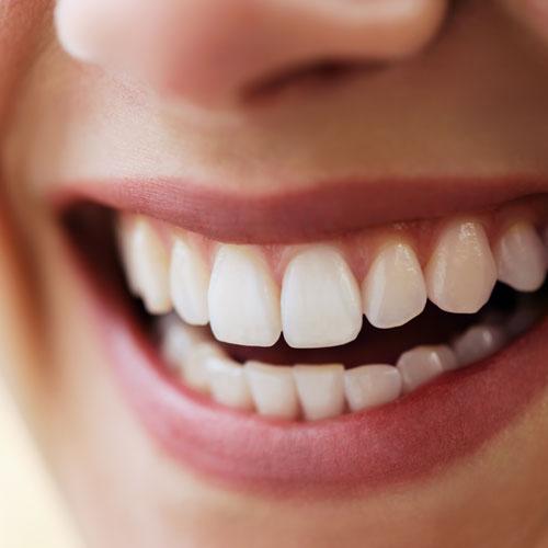 Die professionelle Zahnreinigung (PZR) ist der wichtigste Bestandteil der Prophylaxe.