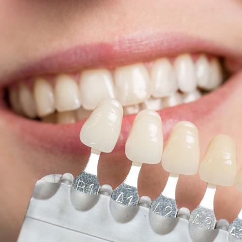 Zähne können gebleicht und so den Nachbarzähnen in der Helligkeit angeglichen werden.